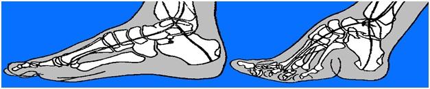 FootBindingRxSchema2